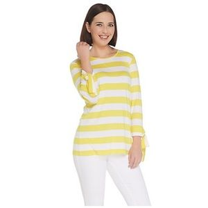 Joan Rivers Striped Tee with Tie Detail Yellow